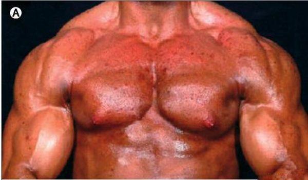 Как принимать анаболические стероиды