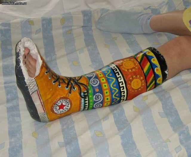Раскраска гипса на ноге