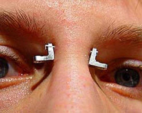 Водяные прыщики на руках: фото, лечение пальцев